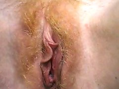 Hairy Redhead Annie Body Gyno By Snahbrandy
